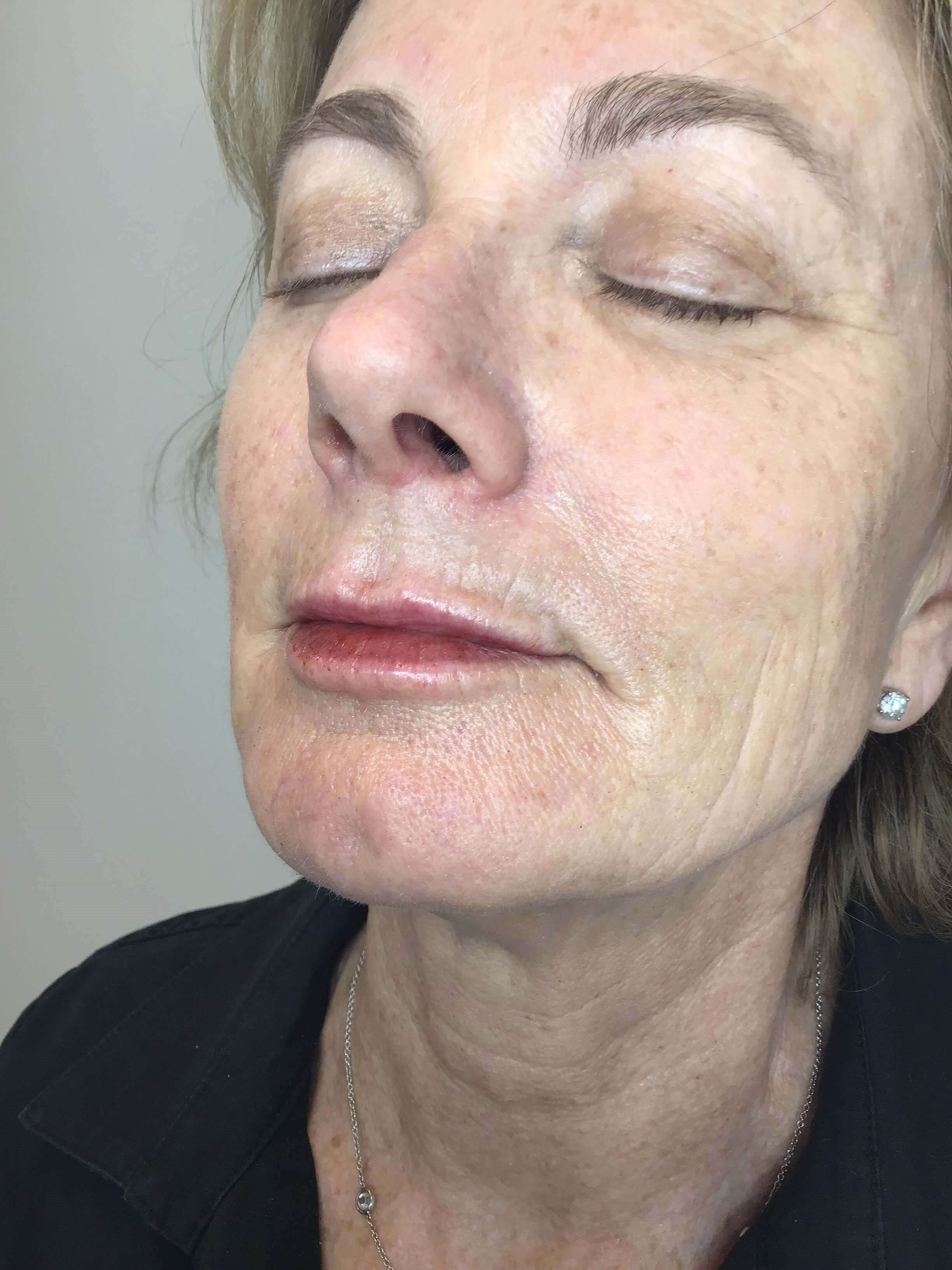 Lip Filler: Juvederm Volbella After