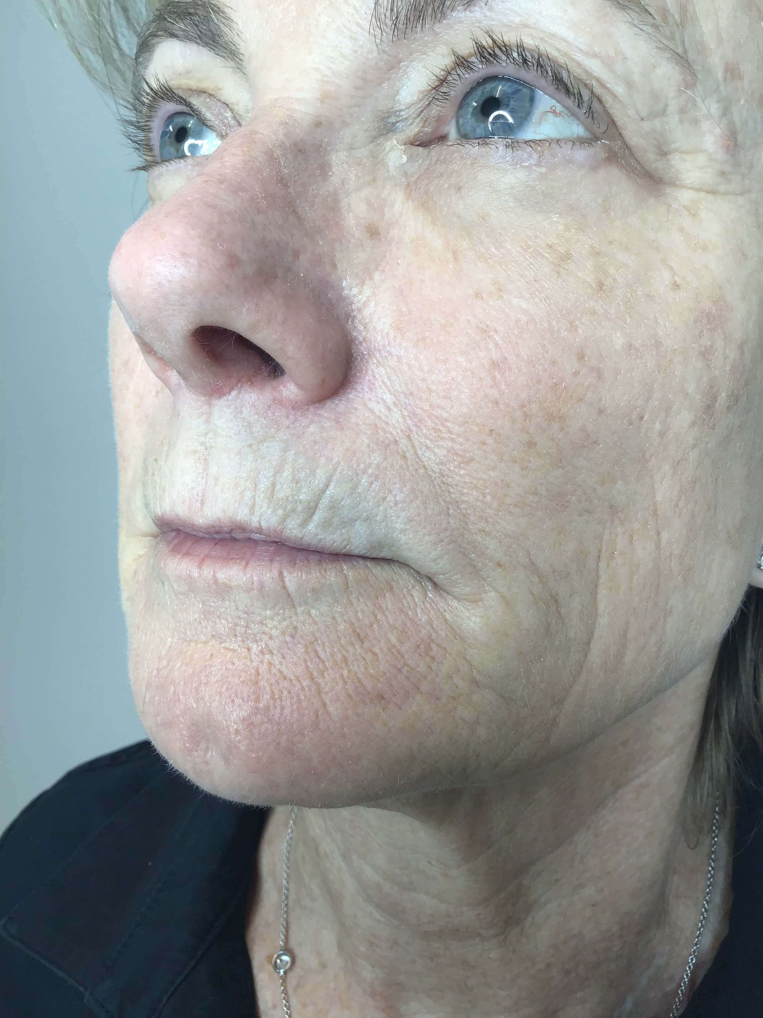 Lip Filler: Juvederm Volbella Before