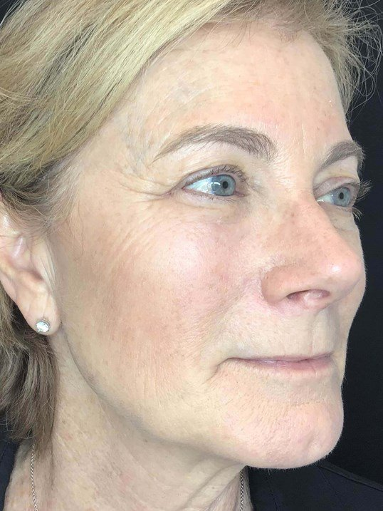 Sculptra Client After