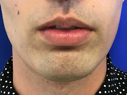 Lip Filler with Juvederm Ultra Before
