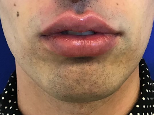 Lip Filler with Juvederm Ultra After