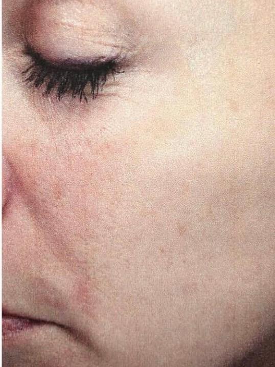 Before And After Ipl Threadlift Visia Skin Analysis Laser Skin Resurfacing Photos