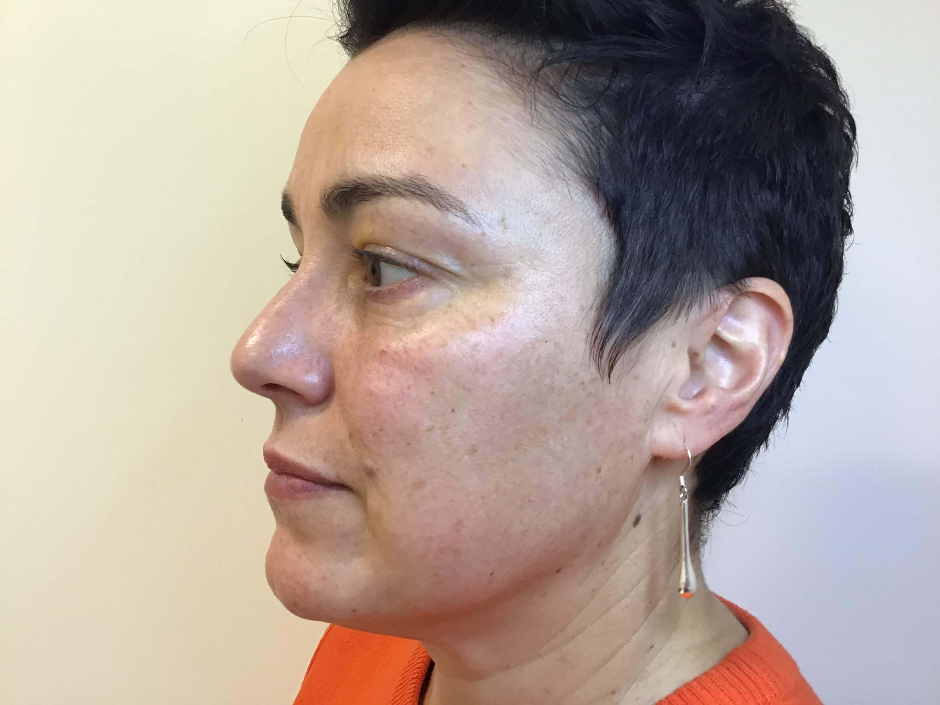 Complete Skin Rejuvenation Before