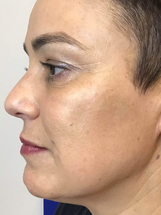 Complete Skin Rejuvenation After