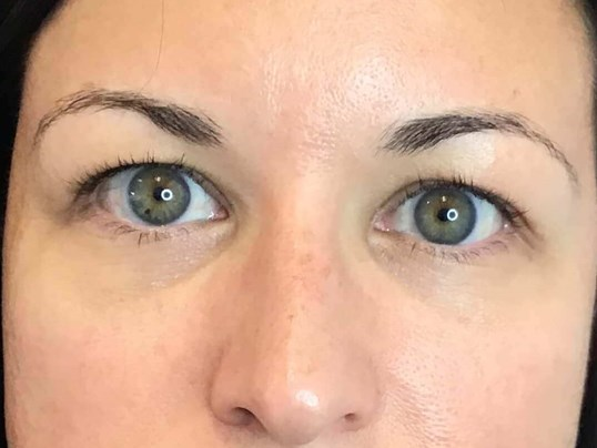 Undereye Filler Restylane Before
