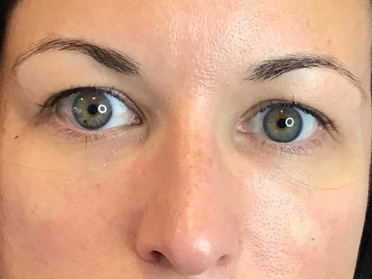 Undereye Filler Restylane After