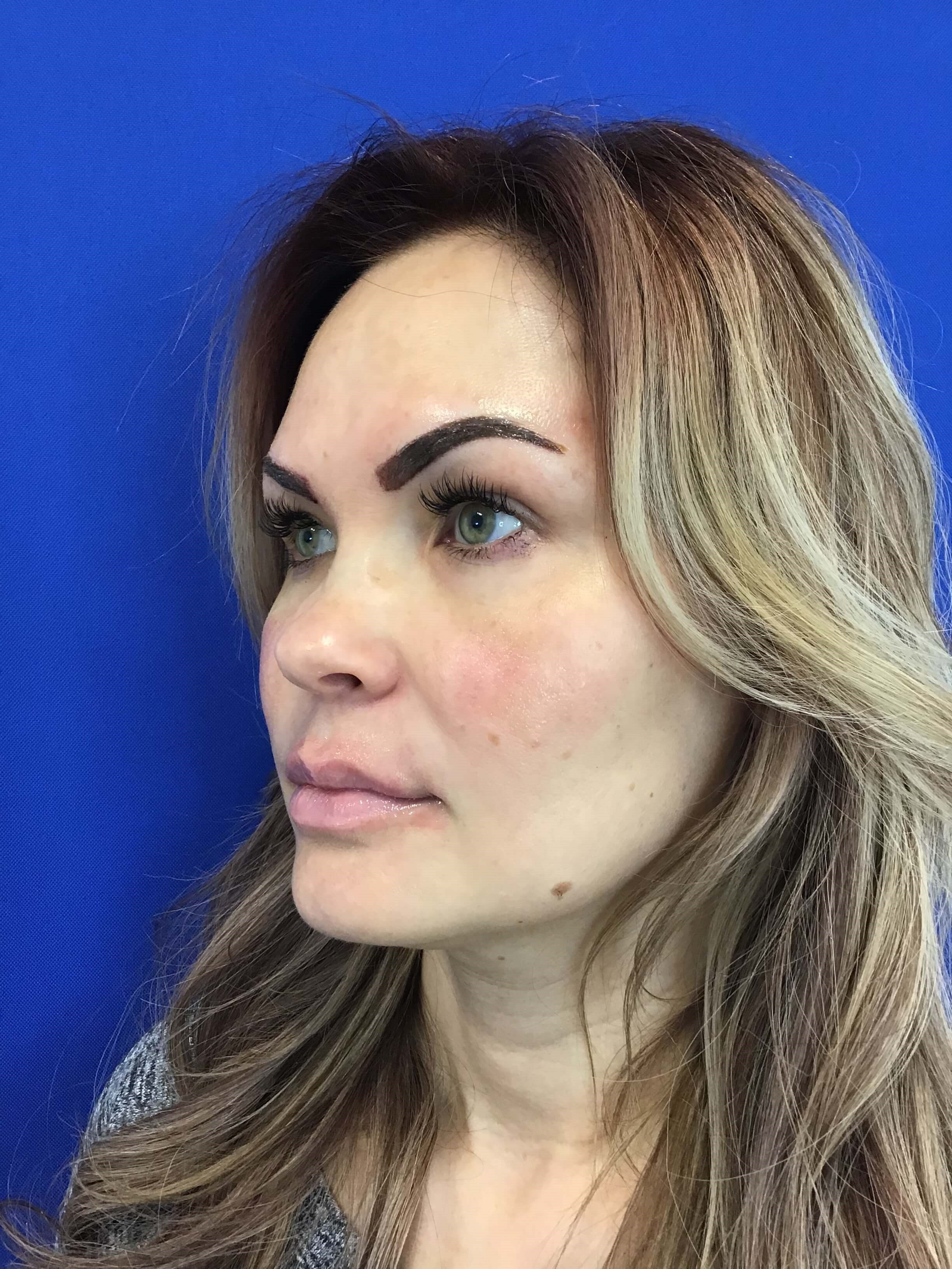 Lip Filler with Restylane Before