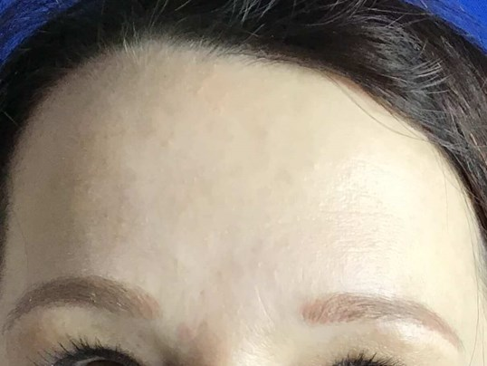 Botox Cosmetic After