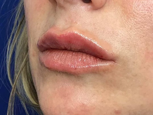 Lip Filler with Volbella After