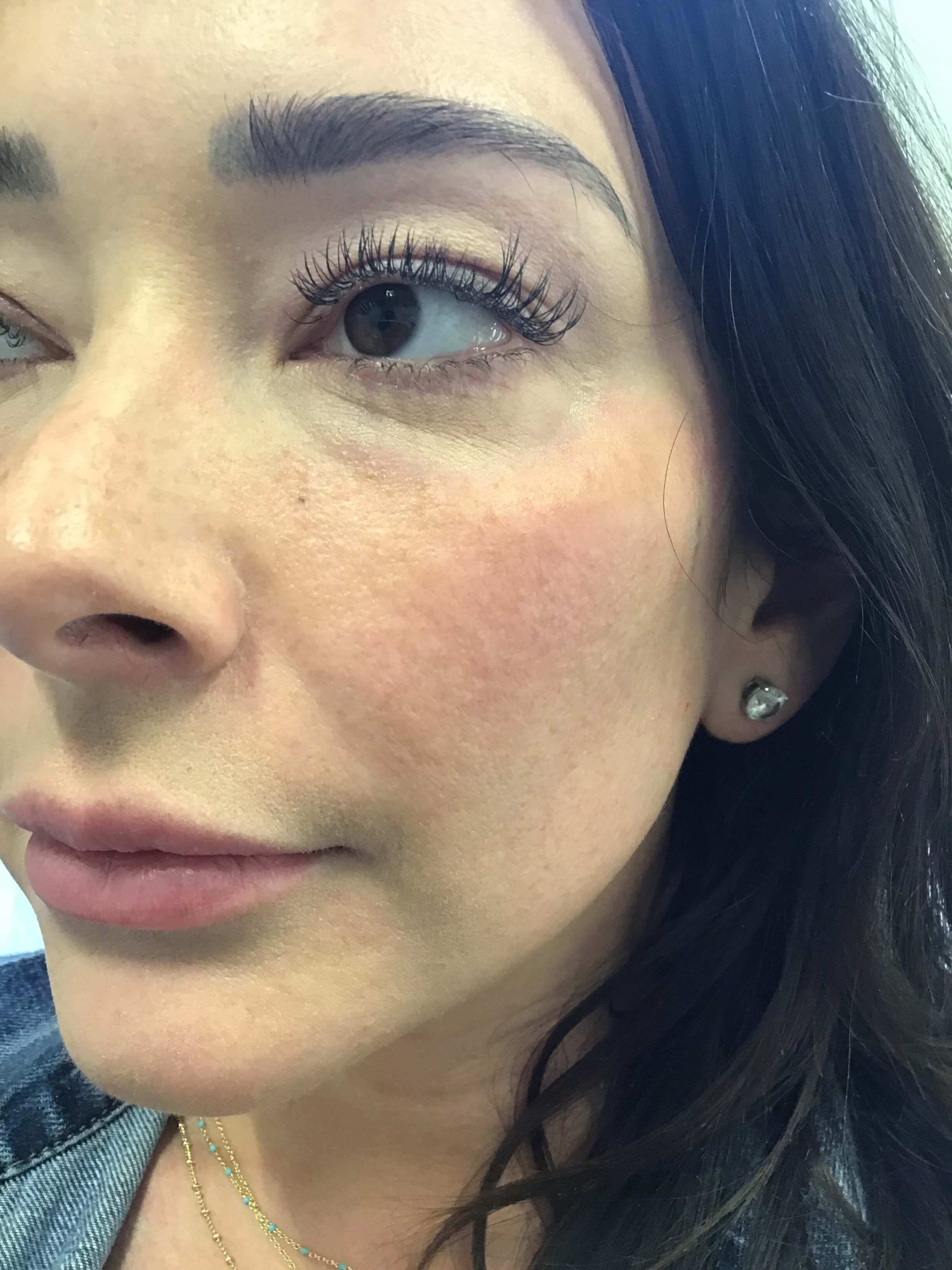 Cheek Filler With Radiesse After