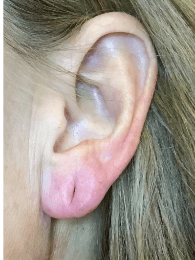 Earlobe Rejuvenation After