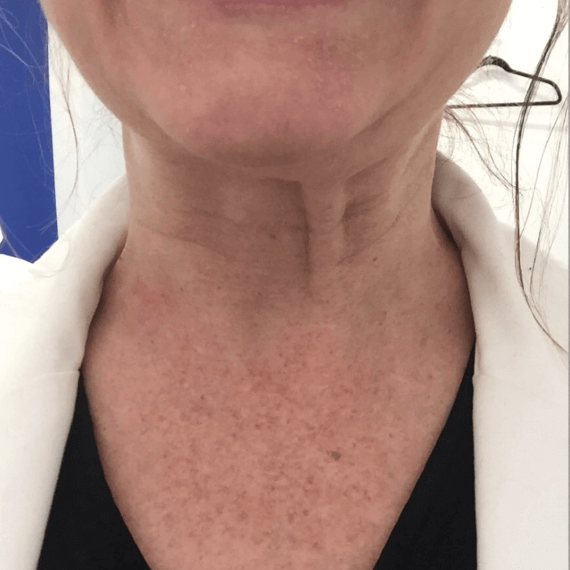 Botox For Platysmal Bands Before