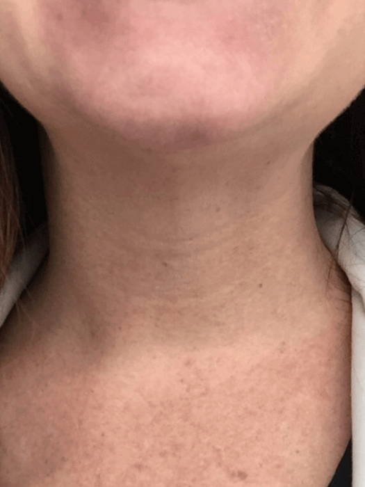 Botox For Platysmal Bands After