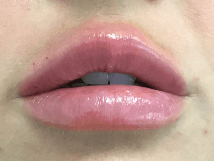 Lip Enhancement with Volbella After