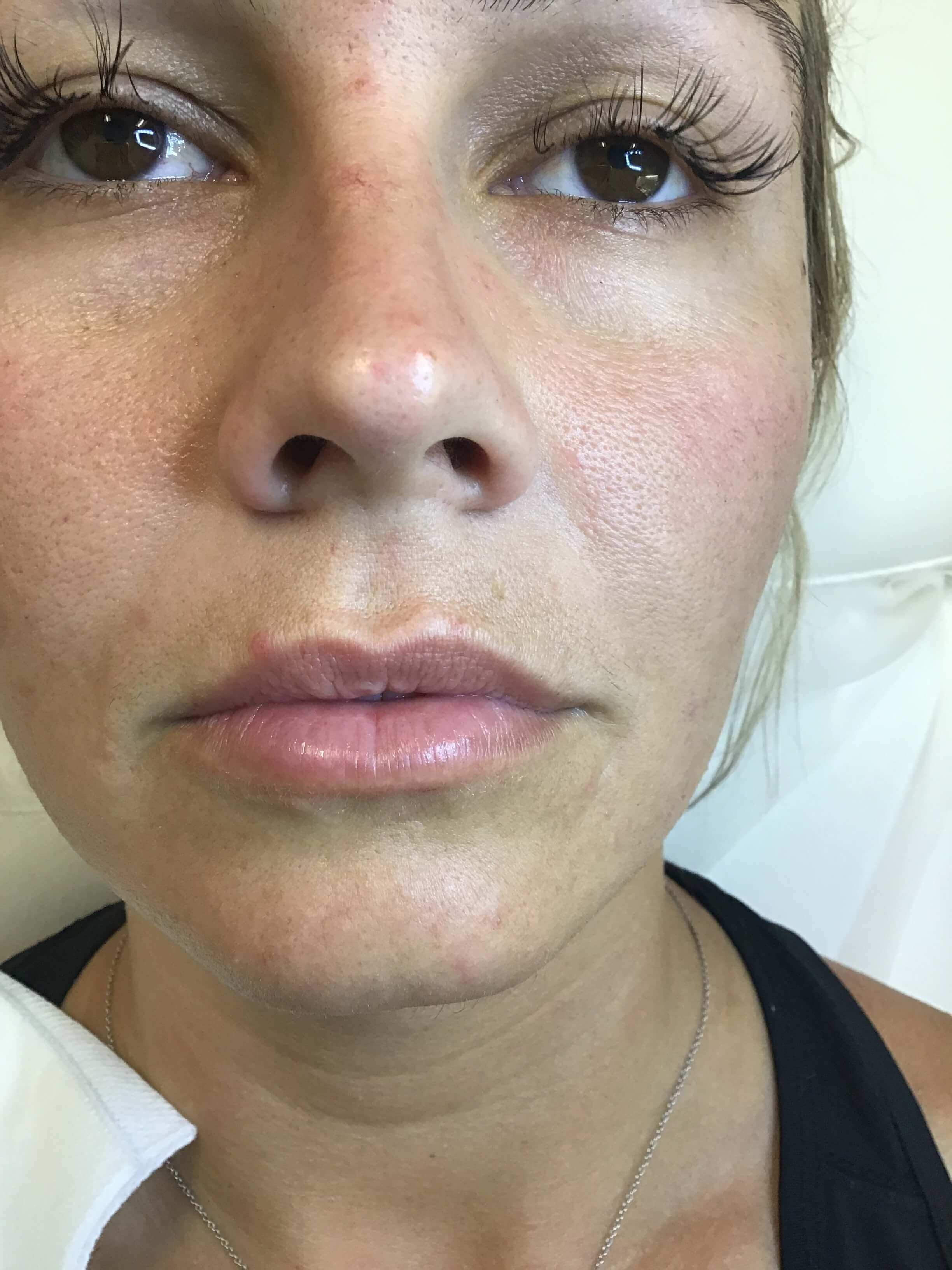 Lip Filler with Volbella Before
