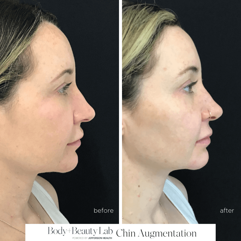 Chin Augmentation Before