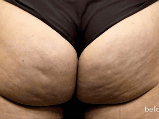 Sculptra Booty Lift Before