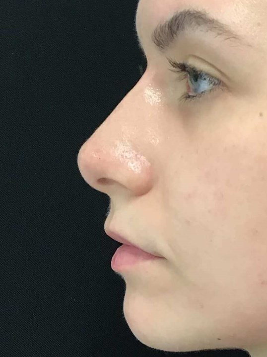 Liquid Rhinoplasty After