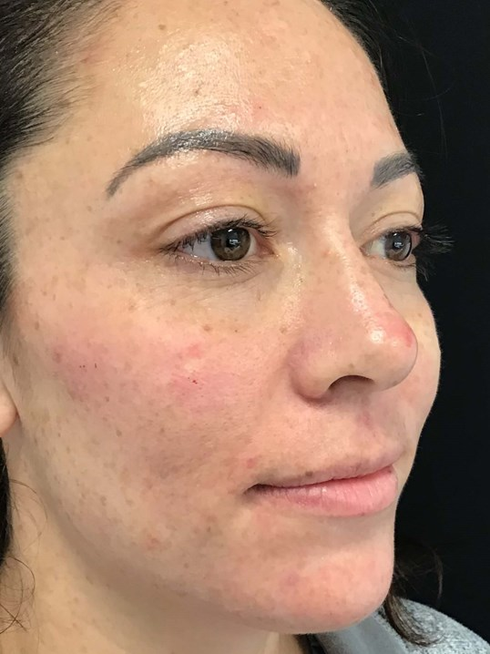 Liquid Facelift, Philadelphia After