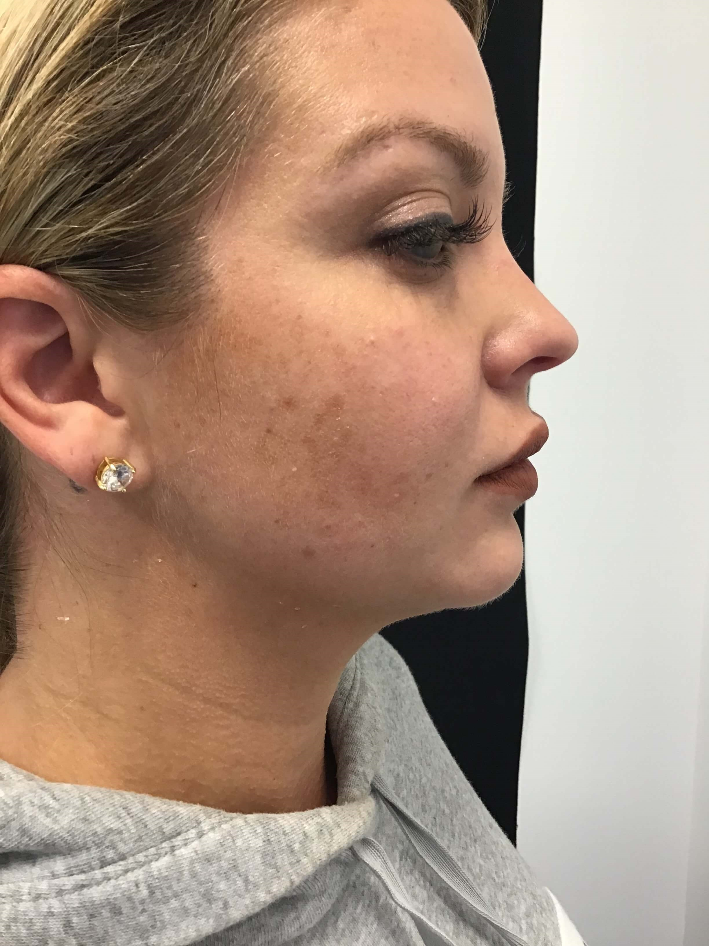 Jawline with Restylane Before