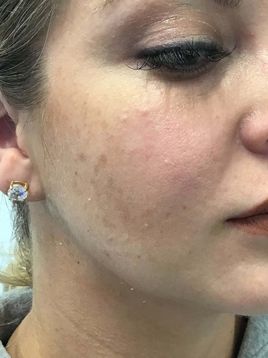 Jawline with Restylane After