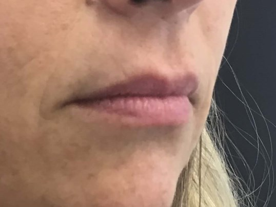 Lip Enhancement, Volbella Before
