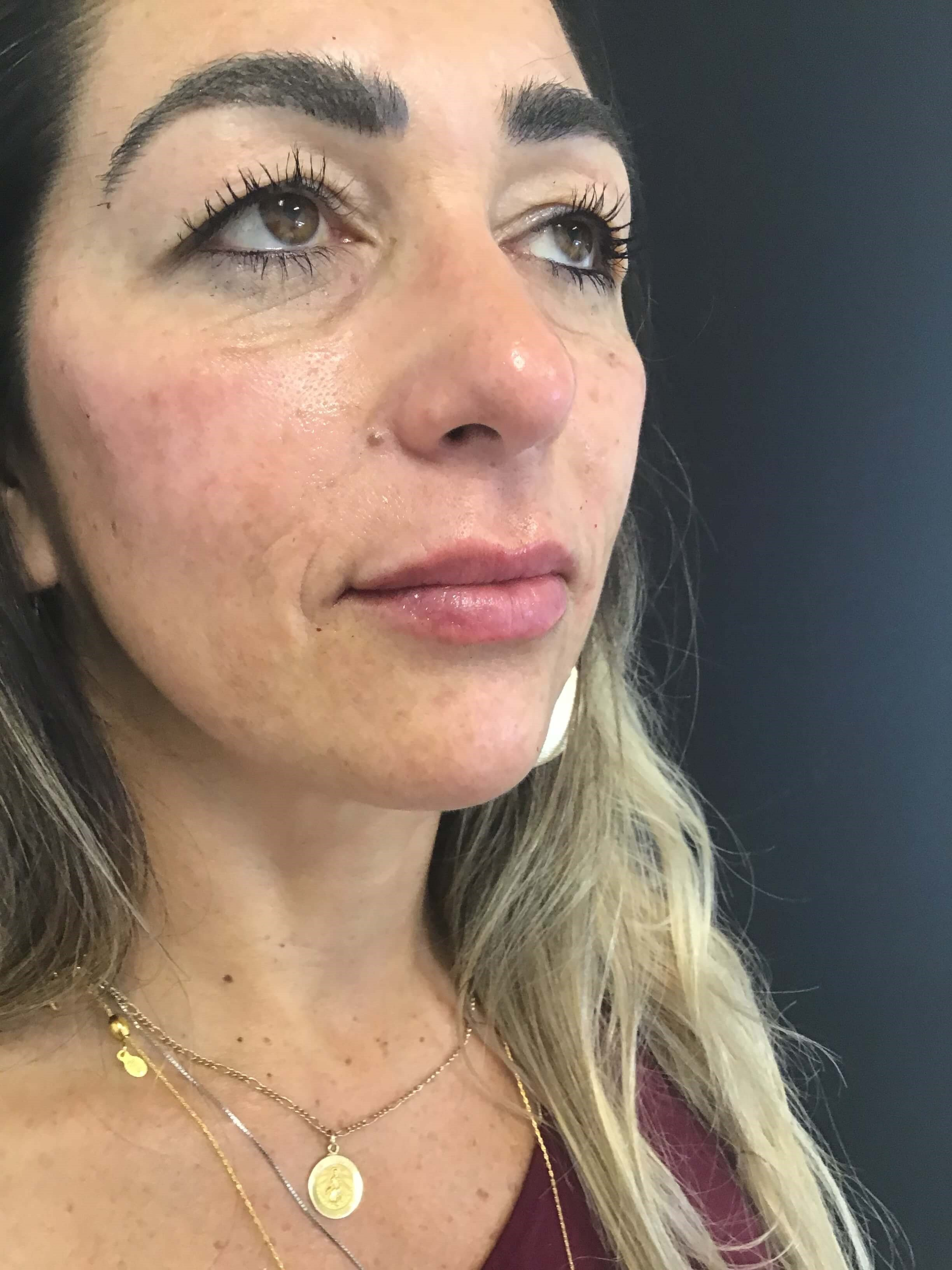 Liquid Facelift, Philly After