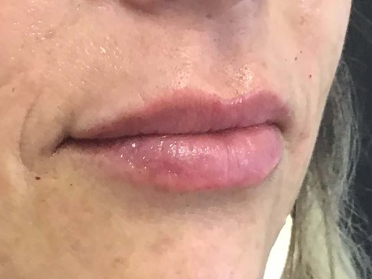 Lip Enhancement, Volbella After