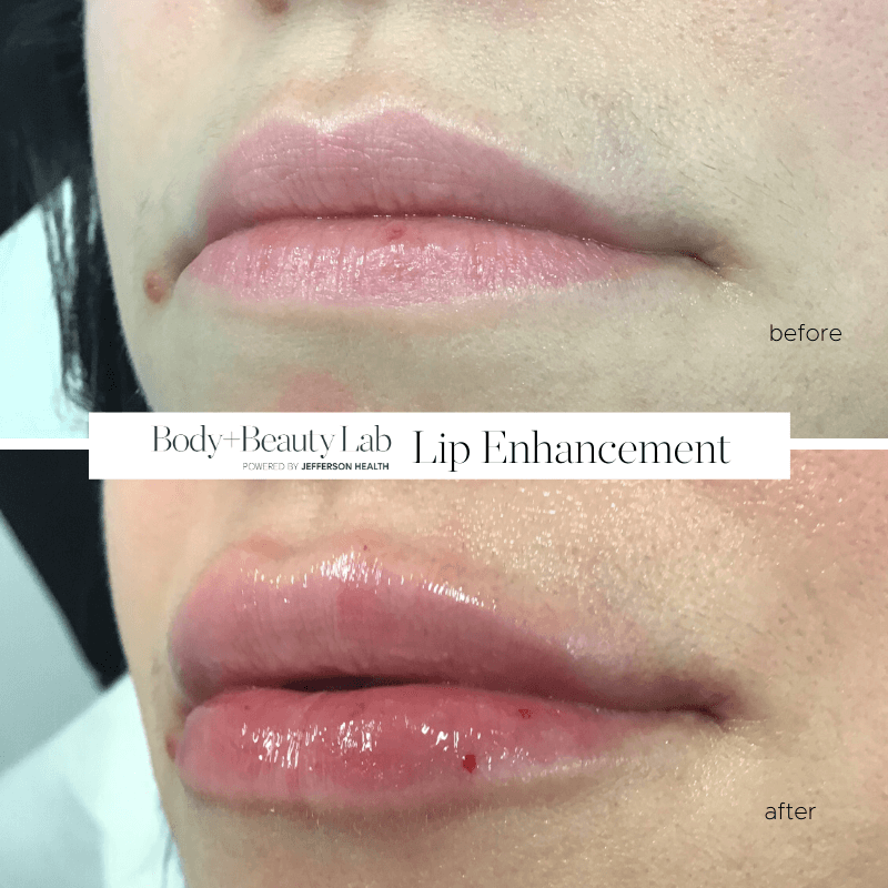 Volbella Lips Before