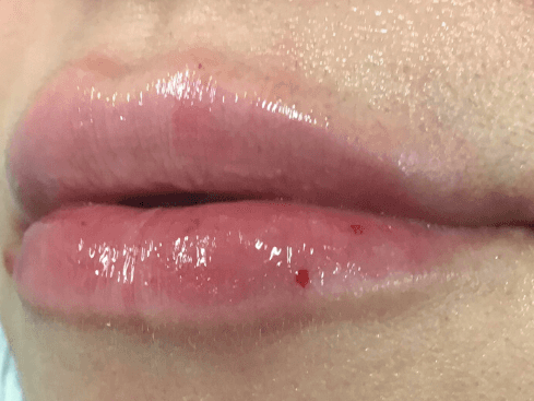 Volbella Lips After