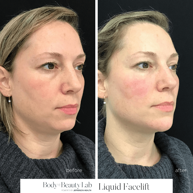 Liquid Facelift, Philadelphia Before