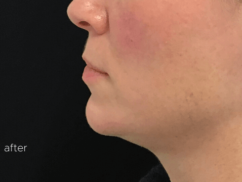Chin Augmentation Radiesse After