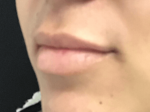 Lip Filler Juvederm Before