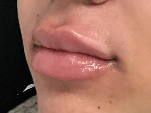 Lip Filler Juvederm After