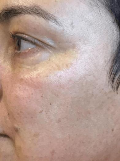 Before And After Ipl Hydrafacial Laser Skin Resurfacing Facial Chemical Peel Photos